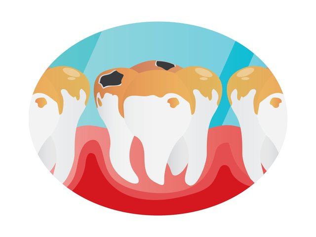 Pediatric Dentistry: What You Need to Know about Tooth Decay in Kids